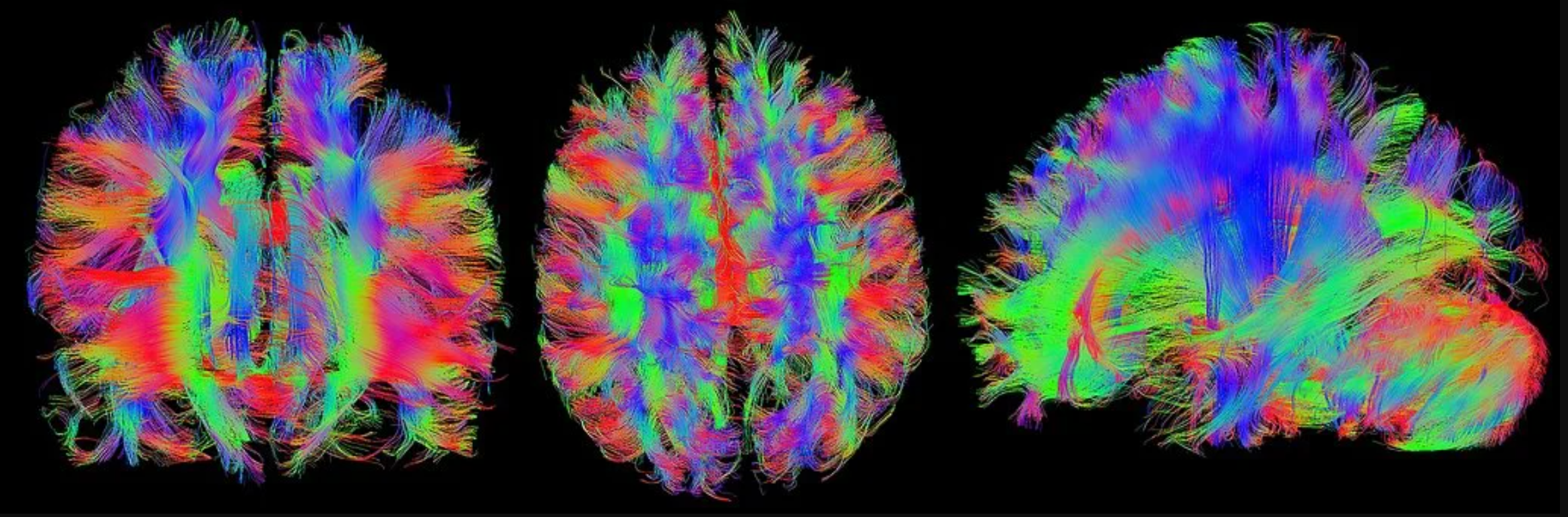 What Can Neuroscience Contribute to Economics?